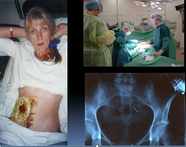Left: Grace with Ileostomy and burn scars. Right: closing up after successful surgery in the Netherlands. Bottom Right: xray of pelvis showing the 4 electrodes at base of spine and the Interstimdevice on top right of picture.
