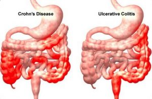 Crohns Ulcerative Colitis Grace Gawler Institute