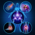 Grace Gawler Arthritis Inflammation rosehip vital