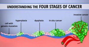 understand-cancer